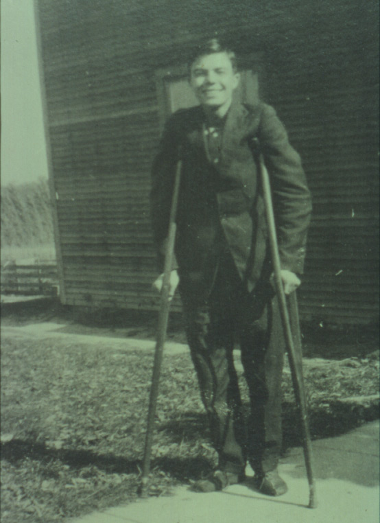 Milton Erickson with crutches